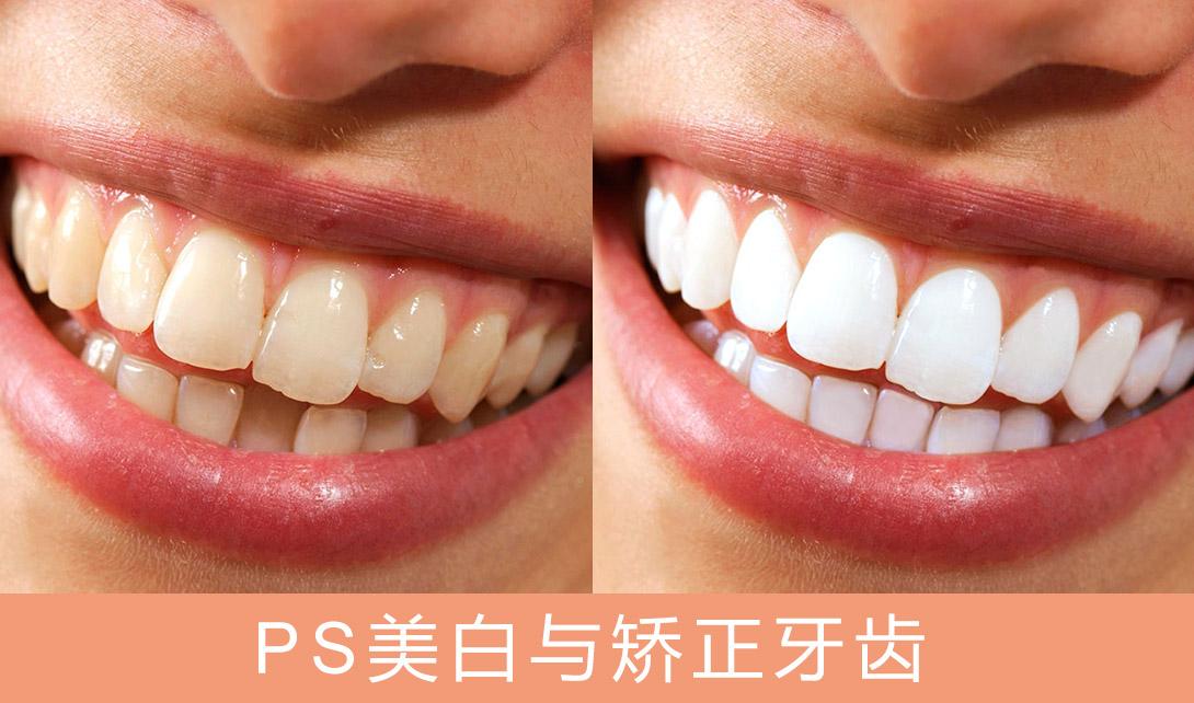 PS-5分钟制作美白与矫正牙齿视频教程
